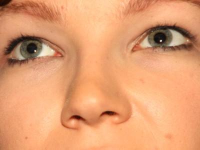 Schlupflider kaschieren mit klebestreifen plasmapen co - Schlupflieder schminken ...