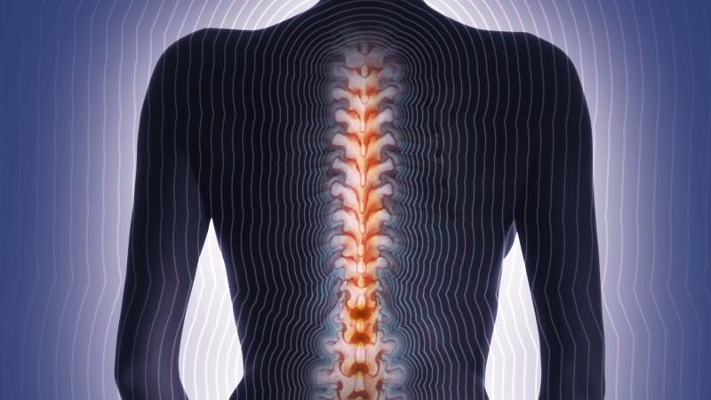 Nie wieder Rückenschmerzen!