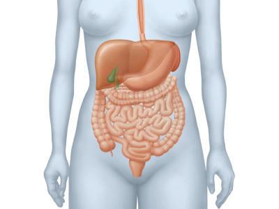 Gallensteine: Bei diesen Symptomen hilft nur die Operation