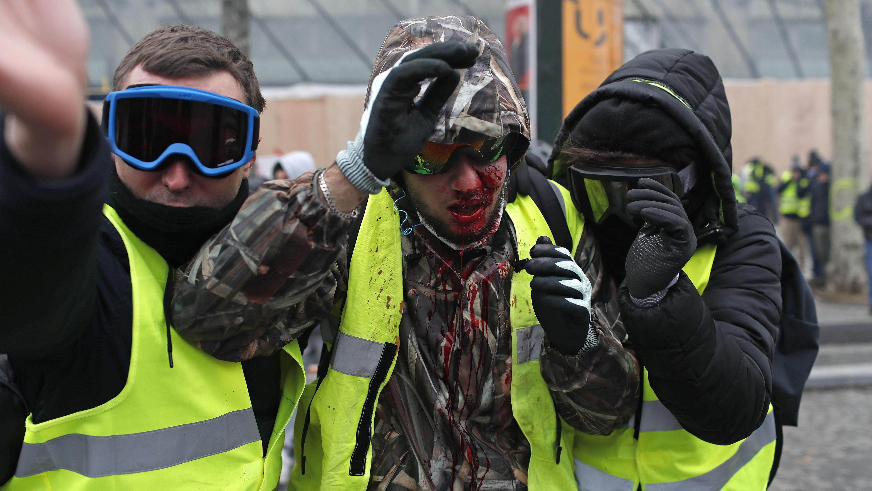 08.12.2018, Frankreich, Paris: Ein Demonstrator der «Gilets Jaunes» (Gelbwesten) ist mit Blut bedeckt, nachdem er bei einem Protest verletzt wurde. Bei Protesten der «Gelbwesten» sind am Samstagvormittag in Paris mehrere Hundert Menschen festgenommen