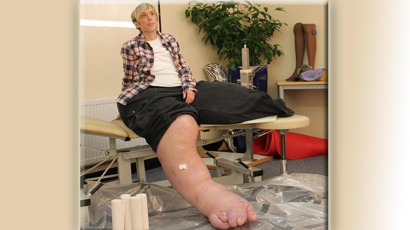 Gendefekt: Beine hören nicht auf zu wachsen und wiegen 108
