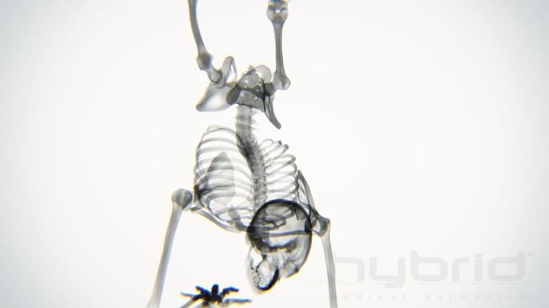 Skelett beim Yoga: Röntgenbilder zeigen Verrenkungen