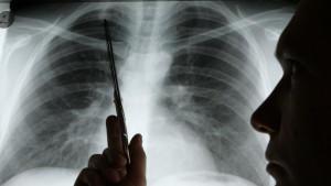 Lungenkrebs Bei Kindern