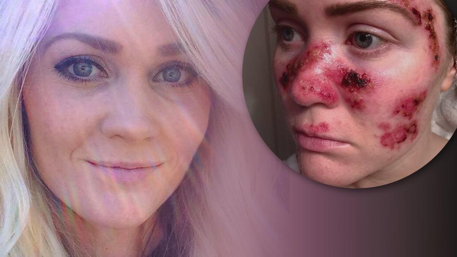 Hautkrebs durch Sonnenbank: Diese junge Mutter will mit ihrem Schock ...
