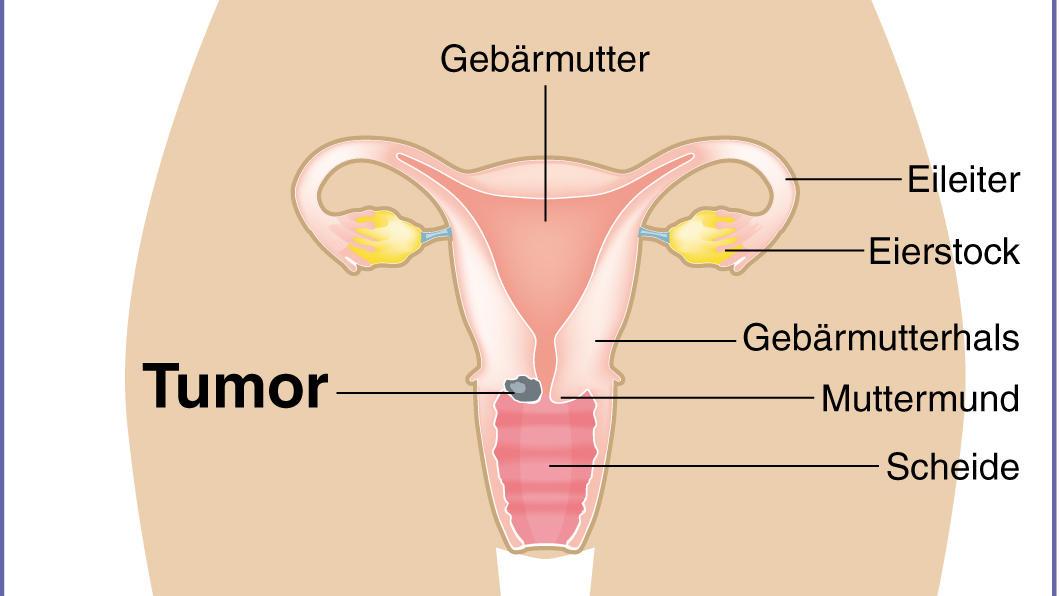 Schön Bild Des Gebärmutterhalses Galerie - Anatomie Von Menschlichen ...