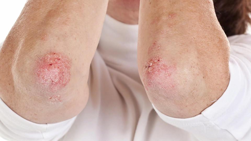 Schuppenflechte Ursachen Und Behandlung Von Psoriasis